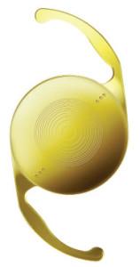 AcrySof IQ Restor Toric: multifokális, tórikus, színezett, aszférikus műlencse