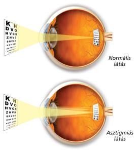 Az asztigmiás szem fénytörése