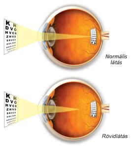 Normál látás / Rövidlátás
