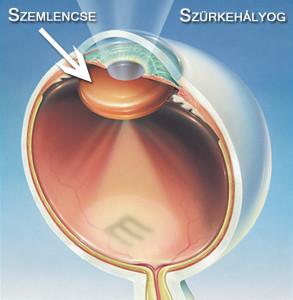 Szürkehályog / Normál szem