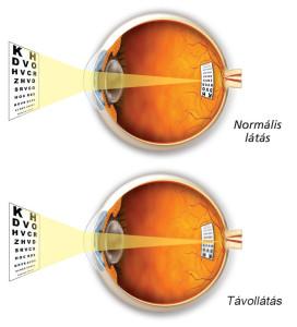 Normál látás / Távollátás
